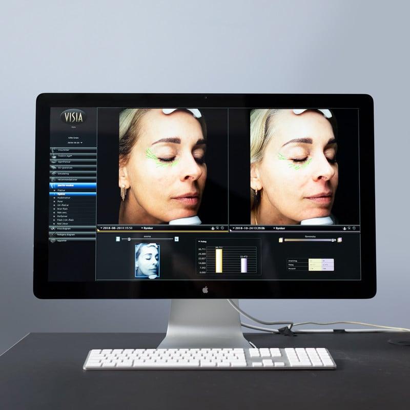 Silke's VISIA scans